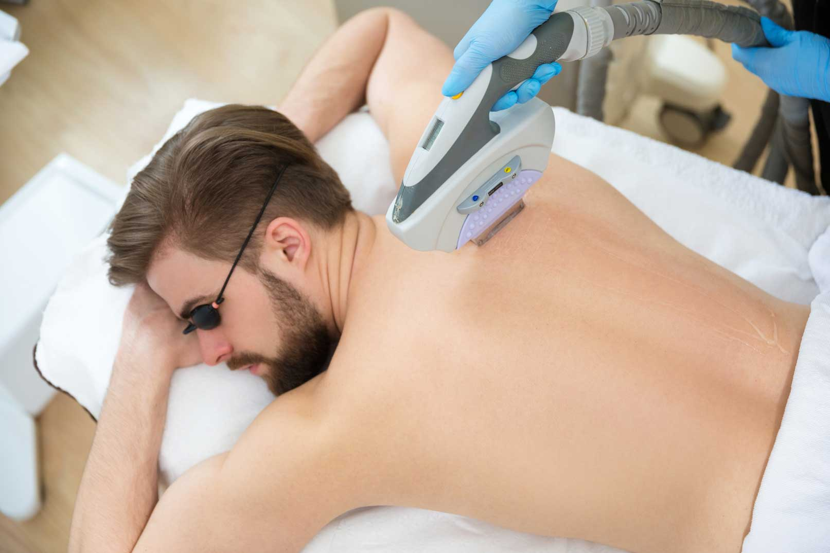 How Much Is Cost Of Laser Hair Removal In Uk Colaz Blog